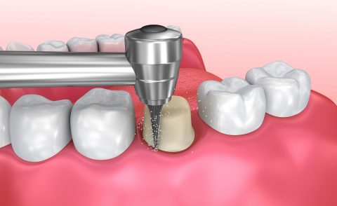 dental crown - cosmetic procedure