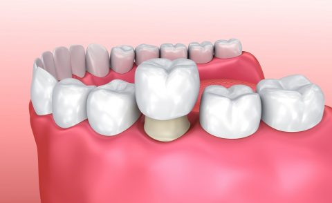 tooth crown - cosmetic dentistry