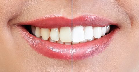 teeth whitening - cosmetic dentist