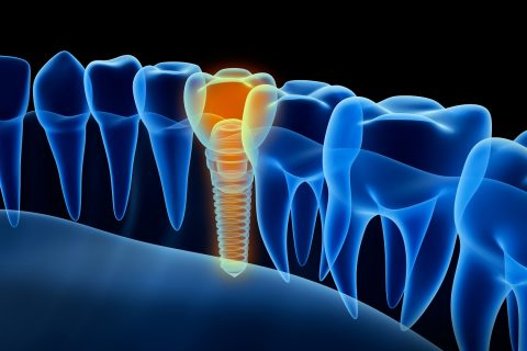 visual of tooth implant from Texas Dental