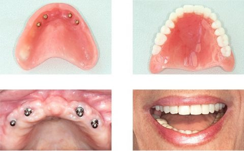 example of full mouth dental implants